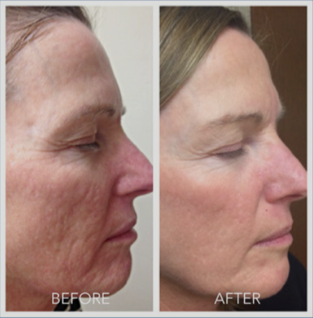 microneedling reviews before and after