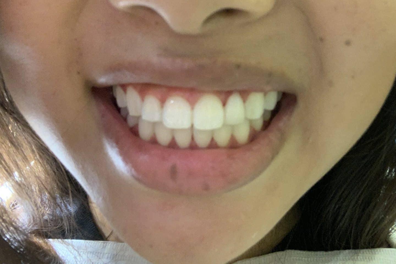 zoom teeth whitening reviews pain
